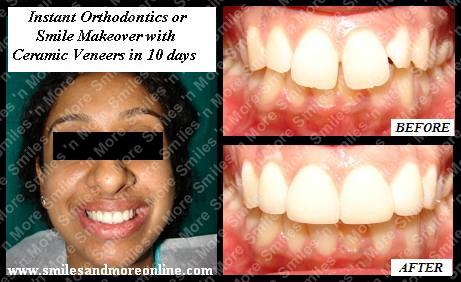 Instant Orthodontics to close midline gap and level the front teeth