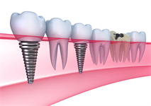 Dental Implants In HSR Layout, Bangalore